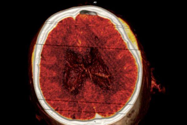 papadopoulos-evangelos-ct-guided-endoscopic-17A587A389-FF43-3FD7-F827-7C98526FE9AE.jpg