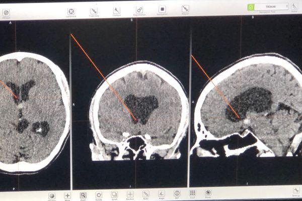 papadopoulos-evangelos-ct-guided-endoscopic-66CDDE7E4-37F4-5943-12F1-268399C74F2A.jpg